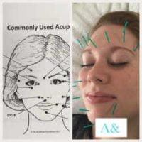 Cosmetic Acupuncture & Aesthetics